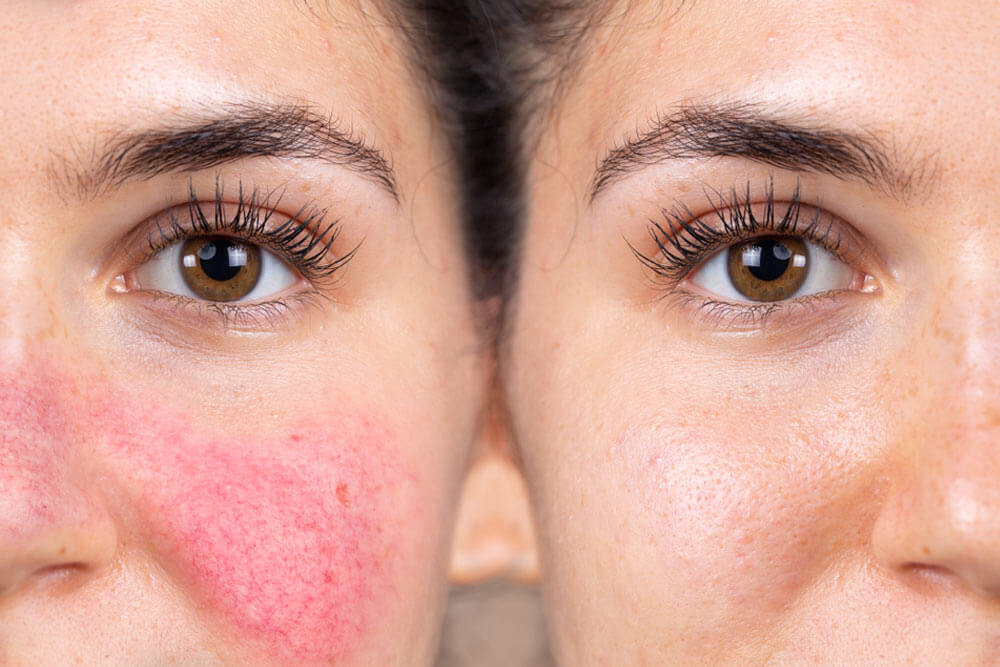 Rosacea on face before and after